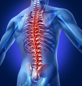 Illustration of back pain throughout the spine